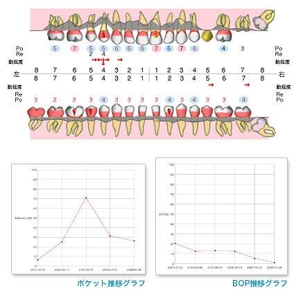 ⑤ 歯周病の検査(6点法)