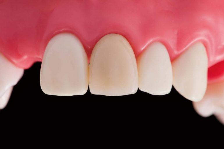 神経のない歯の変色