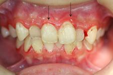 軽度歯周炎