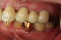 重度歯周炎の治療例