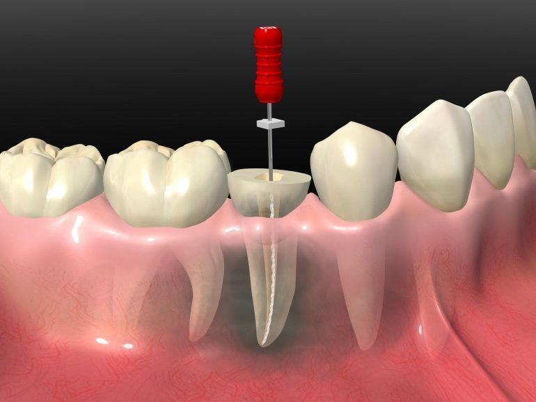 根管治療で重度虫歯の抜歯を回避
