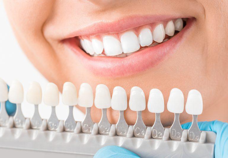 前歯の色・形を整える