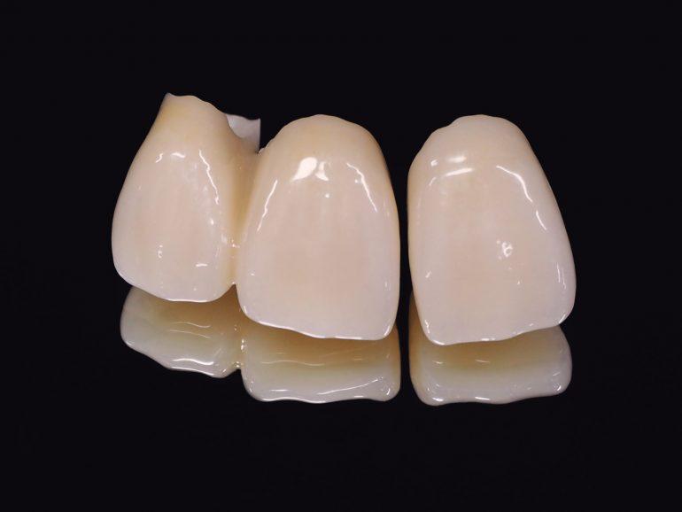 前歯の差し歯をきれいにしたい