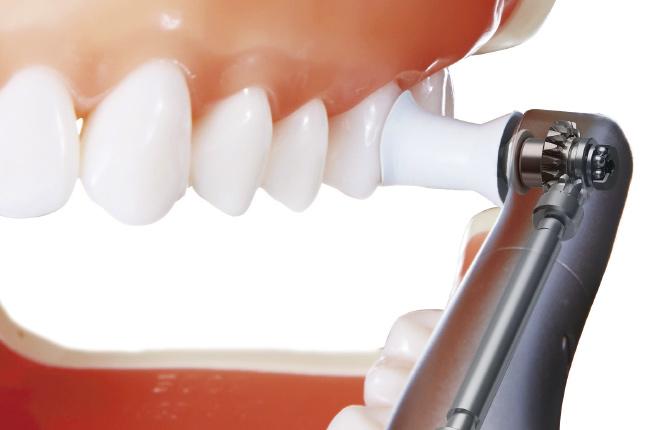 PMTC(歯のクリーニング)